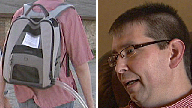 Troy Golden (right) has a plastic heart powered by a pump in his rucksack (left)