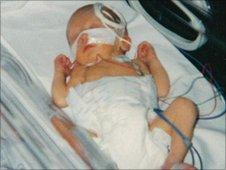 Alex Haynes as baby