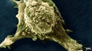 Migrating Cancer Cell