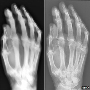 Side-by-side X-ray images of a hand (courtesy RSNA)