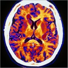 CT scan through the brain of a multiple sclerosis patient