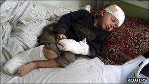 A boy injured during a Nato air strike lies on a hospital bed in eastern Kunar province on 20 February 2011