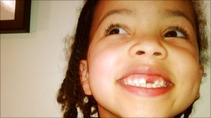 Girl with tooth missing