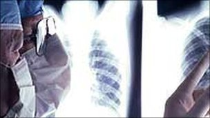 Surgeon examines chest x-ray