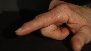 Arthritic finger