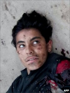 This picture taken on April 3, 2011 shows the injured suicide bomber with his explosive vest partially detonated lying on the ground 