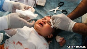 A baby being treated for shrapnel wounds in Misrata, 18 April 2010