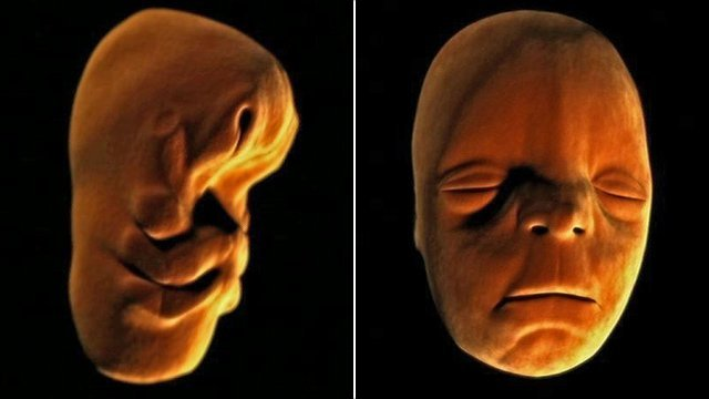 Human embryo at 1 month and 10 weeks