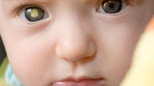 An illustration of how retinoblastoma could look in a young baby's eye