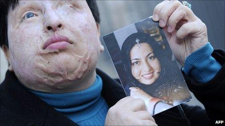 伊朗人与兽_[转载]人间悲剧与人间喜剧,以眼还眼与不以眼还眼