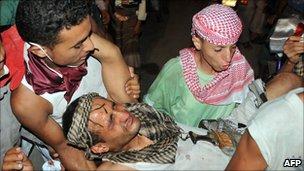 Injured protester in Taiz. 29 May 2011