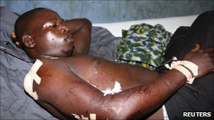 Man injured by bomb blasts in Bauchi (30 May 2011)