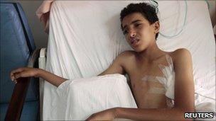 An injured boy in Sanaa hospital. Photo: 4 June 2011