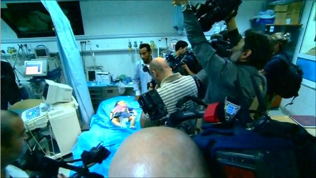 Injured child surrounded by cameras