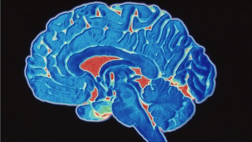 Scan of a healthy brain