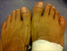 David Haye's broken toe