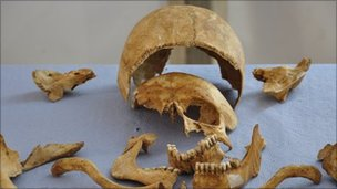 One of more than a 100 skeletons discovered in mass graves at York