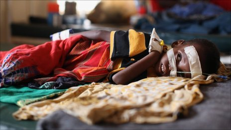 A young boy rests on a hospital bed in a paediatric ward adjacent to the Ifo refugee camp which makes up part of the giant Dadaab refugee settlement on July 19, 2011 in Dadaab, Kenya height=261