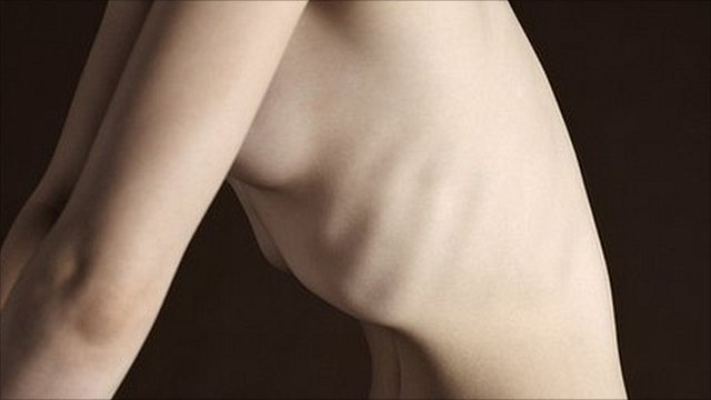 Protruding ribs of a nude woman, illustrating severe weight loss Pic: SPL