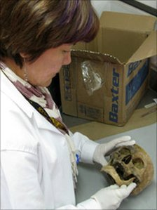 Forensic worker examines a skull at Colombia's national institute of forensic medicine