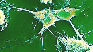 In MS, the immune system attacks myelin in nerve fibres