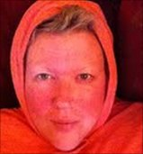 Val looking 'au naturel', with no make-up, eczema and feeling cold!