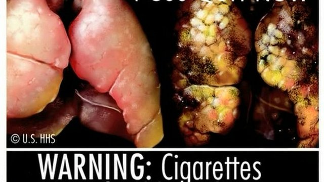 Graphic image of diseased lungs as will appear on tobacco packaging