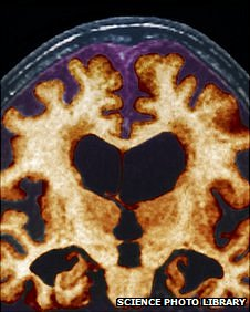 Brain scan of Alzheimer's patient (file image)