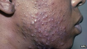 Acne on a man&#039;s cheek
