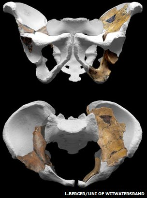 Pelvis (L.Berger/Uni of Witwatersrand)