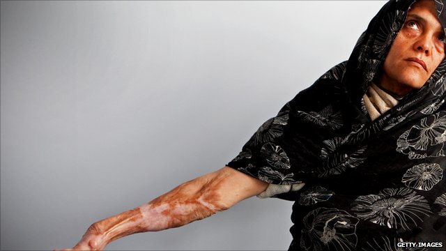 A woman in Herat shows her arm, covered in scars from burns she inflicted on herself a decade ago