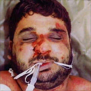 Baha Mousa after death