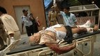 A man injured in bomb blast is brought to the RML hospital in New Delhi, India, Wednesday, 7 September