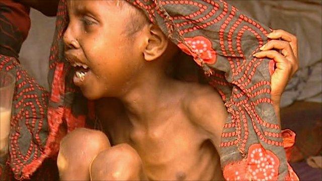 Starving child