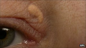 Eyelid marks warn of heart attack (Denmark)