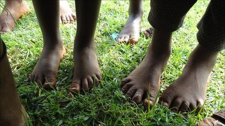 Barefeet children