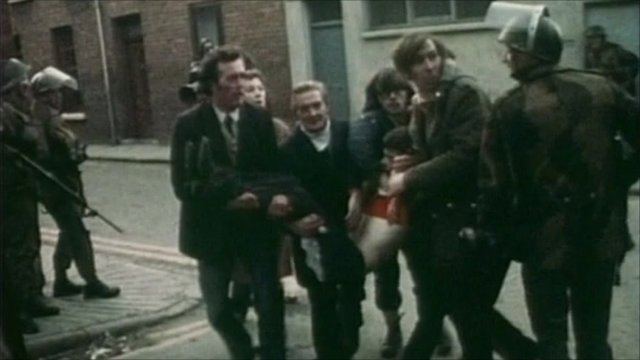 Injured youngster during Bloody Sunday shootings