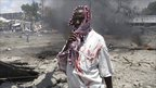 A wounded man stands at the scene of a deadly explosion in Mogadishu, Somalia, on Tuesday