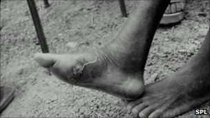 Guinea worm