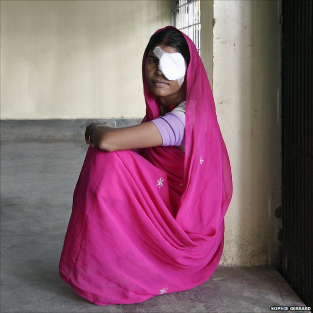 Chhato Devi, 30, the day after cataract surgery, AJEH, Bihar, India