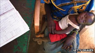 Child suffering from malaria in south Sudan