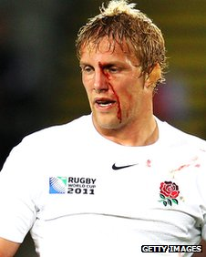 A bloodied Lewis Moody pictured during England's defeat by France in the last eight