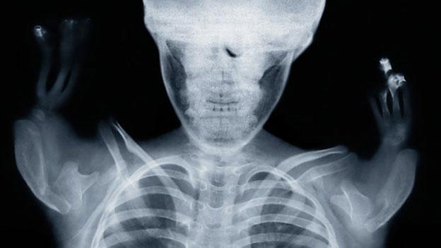 Thalidomide child x-ray