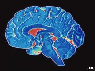 Scan of a human brain