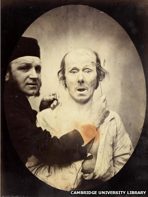 Benjamin Duchenne and man with electrodes on his facial muscles