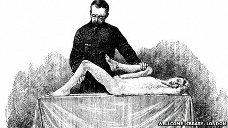 Hugh Owen Thomas has been called the father of modern orthopaedics