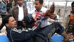 A wounded Yemeni pro-reform protester is rushed to a makeshift hospital in Sanaa's Change Square