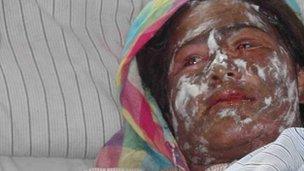 Mumtaz in hospital