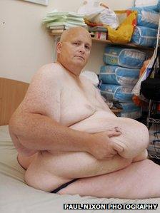 World s fattest man paul where