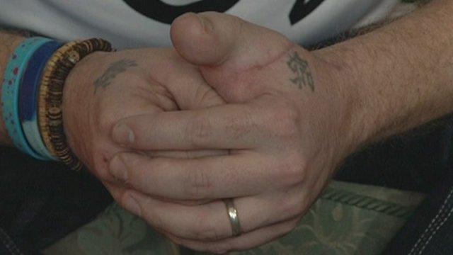 James Byrne's hand